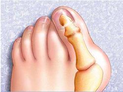 Шишка на ноге возле пальцев