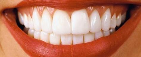 Наращивание зубов, рекомендации